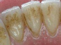 Diş beyazliği