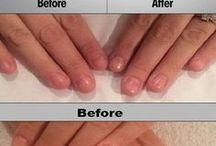 hear and nail health