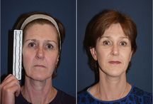 Deep Plane Facelift / Before and After Photos of Clients