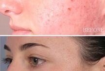 Hyper pigmentation/skin brightening/ uneven skin tone