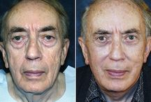 Facelift Workouts Specifically For Men