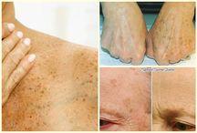 bőrszépítés