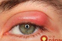 Oční jecne zrno