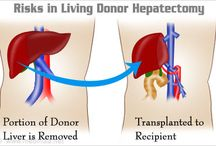 """Liver Transplant / In India, 90% of liver transplants are from living donors (usually family members or """"close emotional relationships""""), whereas in the United States, only 5% of livers transplanted are from living donors and the remaining 95% are from deceased donors."""