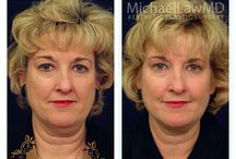 North Carolina Plastic Surgeon Dr. Michael Law Before and After Fat Grafting /  * A Fat transfer is also called fat grafting or fat injection.  The procedure is a complex process: fat must be harvested in such a way as to preserve the integrity of the fat cells. Ordinary liposuction, laser liposuction and ultrasonic liposuction that disrupts the cell membrane of the fat cell will not produce living fat cells. Concentration of the fat and washing the fat will also affect the results.  * Fat transfer can also help reduce the appearance of acne scars