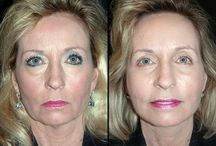 Lift Up Saggy Face Skin And Jowls With Sagging Jowls Face Exercises