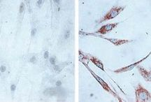 Heat Shock Protein 60 (HSP60) / Images showing the HSP60 in tissue sections and lysates