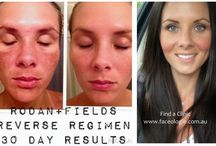 Before After Rodan and Fields / 0