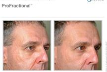 Sciton Laser Treatments