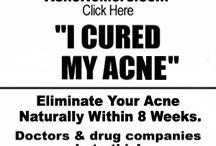 Acne info
