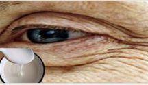 Arrugas ojos
