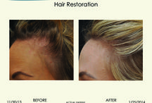 Hair Restoration / Patient used Mani, M.D. hair restoration shampoo, conditioner and peptide serum by Dr. Nasrin Mani of La Jolla Cosmetic Laser Clinic.