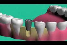 Video | Dentist Forster