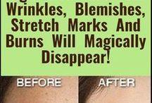 skin marks