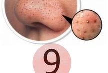DIY:-Acne Treatments