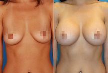 Mommy makeover and augmentation