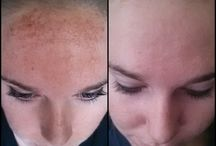 Photofacial is awesome, Come see Marie with 17 years Experience
