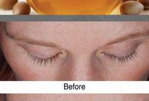 eye lashes  growth