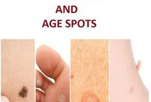 how to cure skin tags moles and dark spots and other things on your skin