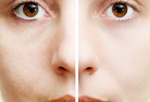 reduce pore size on face