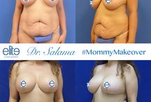 Mommy Makeover / Before and after pictures of the Mommy Makeover plastic surgery procedure performed by board certified plastic surgeon, Dr. Moises Salama.