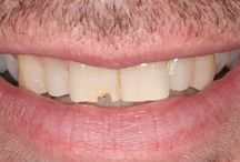 Solutions for chipped teeth / A board showing a range of before and after photographs of patients who have wanted to find a solution to chipped teeth ...and have found it at Elliott McCarthy Dental Care