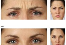 Injectables & Fillers / Botox, Dysport, Restylane, Perlane, and other injectables are becoming increasingly popular for revealing youthful skin with little to no downtime. At SkinCenter, we use only trained cosmetic nurses and doctors to administer these aesthetic treatments to ensure that they are precisely placed to give you your desired results.