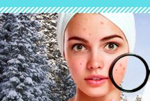 Acne Tips and Products