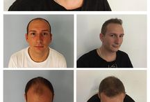 Hair Transplantation Results - Before - After Photos / Hair transplant before after photos and video results for men and women