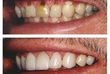 Cosmetic Dentistry / Our dentists have taken extensive training in cosmetic dentistry.  Call 780 962-5538 to learn how we can help you!