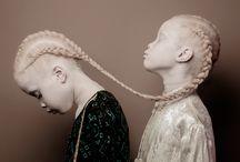 Albino Menschen