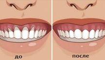 Для зубов