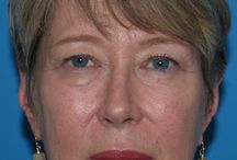 Before and After Blepharoplasty / The Choe Center for Facial Plastic Surgery - Before and After Patient Photo Gallery