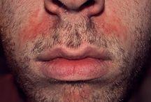 dermatologie; velký červený flek na kůži; (mam dalsi v Google Photos)