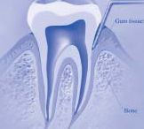 Gum Disease / Periodontal (Gum) Disease is common, and if left untreated, it can cause problems.