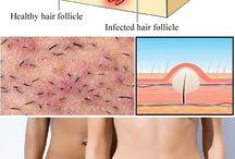 rimedi post depilazione