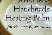 Eczema Stuff