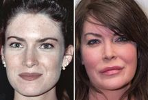 Lara Flynn Boil Before and After / Lara Flynn Boil before and after plastic surgery photos