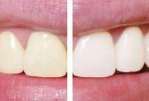 hagelwitte tanden met aardbeien