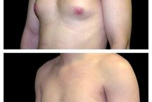 Liposuction / View before and after photos of Dr. Schwartz's best work!