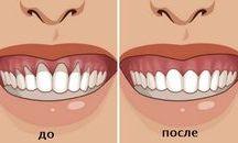 îngrijire dinti