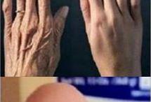Reverse wrinkled hands