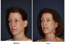 Eyelid Surgery / Before and After Photos of Clients