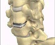 Cervical spinal stenosis  / by Charmaine Carty