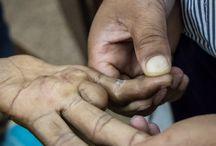 Portfolio: Lalgadh Leprosy Hospital, Nepal / Photos from Lalgadh Leprosy Hospital, Nepal. Published in article in Iltalehti 31.3.2015 http://miikkajarvinen.com/2015/04/02/koyhien-kirous/