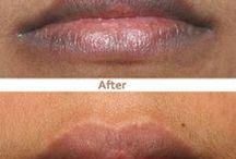 dark lip prob