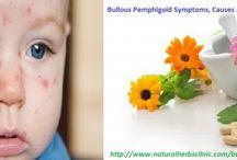 Bullous Pemphigoid skin disease
