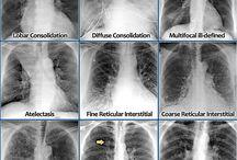 radiológia