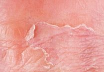 Eczema / by Pasadena Premier Dermatology