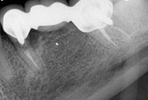 Extractions, socket preservation, Biohorizon Tapered Plus dental implants, restored w/ e.max Hybrid abutments crowns